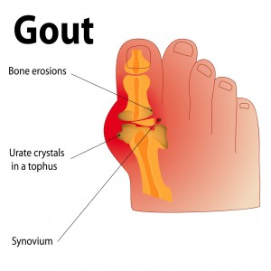 Physiotherapy for Gout